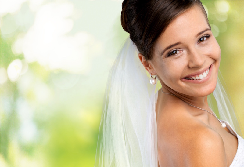 Prepare for Your Big Day with a Smile Makeover